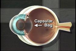 Graphic of capsular bag